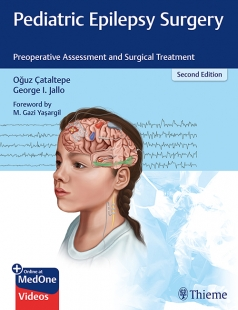 View Details for Pediatric Epilepsy Surgery